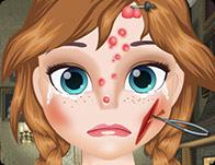Anna Face Problems.