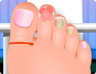 Nail Surgery Foot Spa